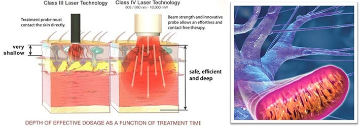 Chiropractic Athens PA Laser Therapy