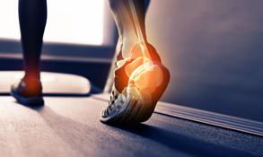 Chiropractic Athens PA symptoms Plantar Fasciitis
